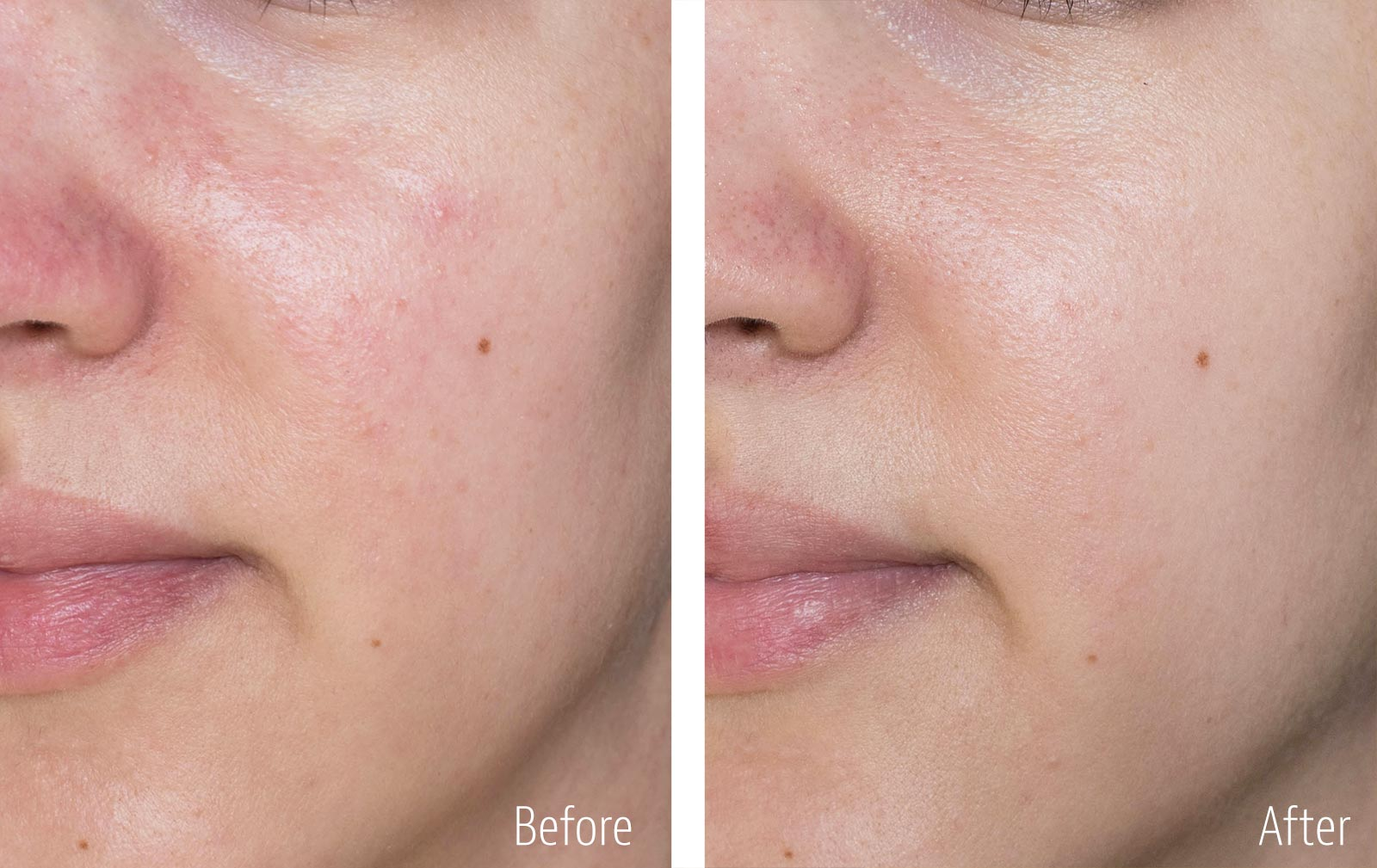 Nayelle Probiotic Skincare Review, Before & After