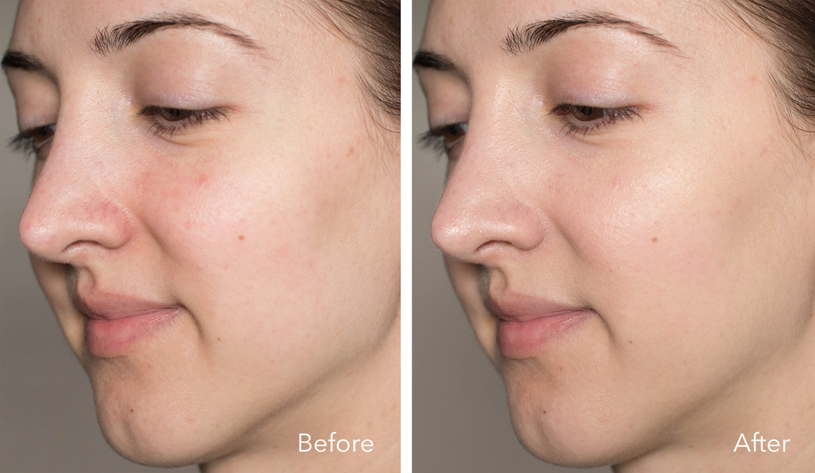 Colorescience All Calm Clinical Redness Corrector before & after