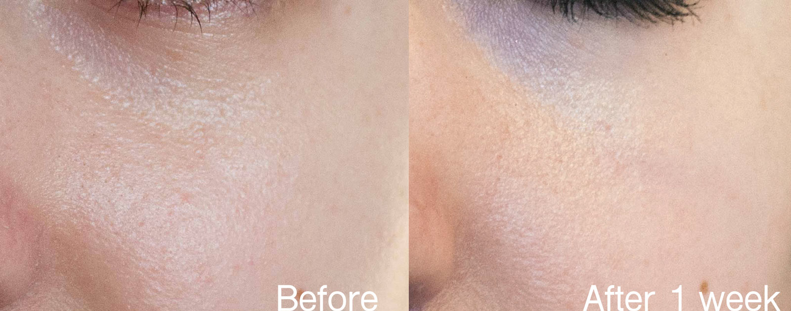 Strivectin advanced retinol pore refiner before and after